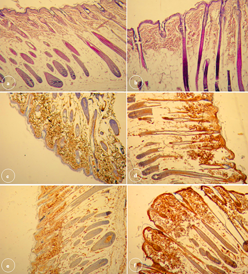 Effect of metalloproteinase-2 on expression of tissue inhibitor of matrix metalloproteinase-4 in cutaneous wound healing in balb/c mice