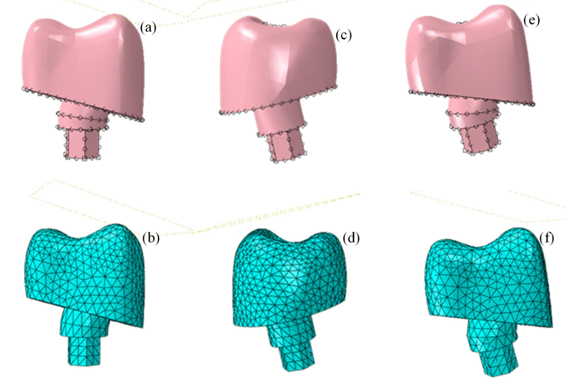 Three Dimensional Evaluation of a Dental Implant in Different Angles by Finite Element Method